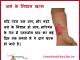 get rid of burn scars marks