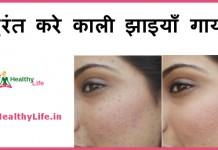 black spots on face