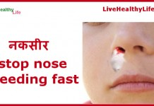stop nose bleeding fast